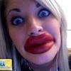 Botox fail!