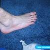 O pé mais feio que você ja viu na vida