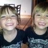 Gêmeas até nos dentes...