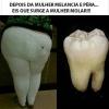 Mulher molar!